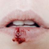 sognare-sangue-bocca